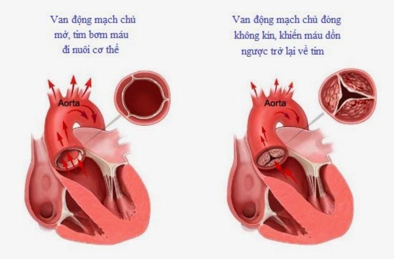 Máu lưu thông chậm do hoạt động co bóp của tim bị suy giảm sẽ gây sung huyết ở phổi và những cơn ho khan
