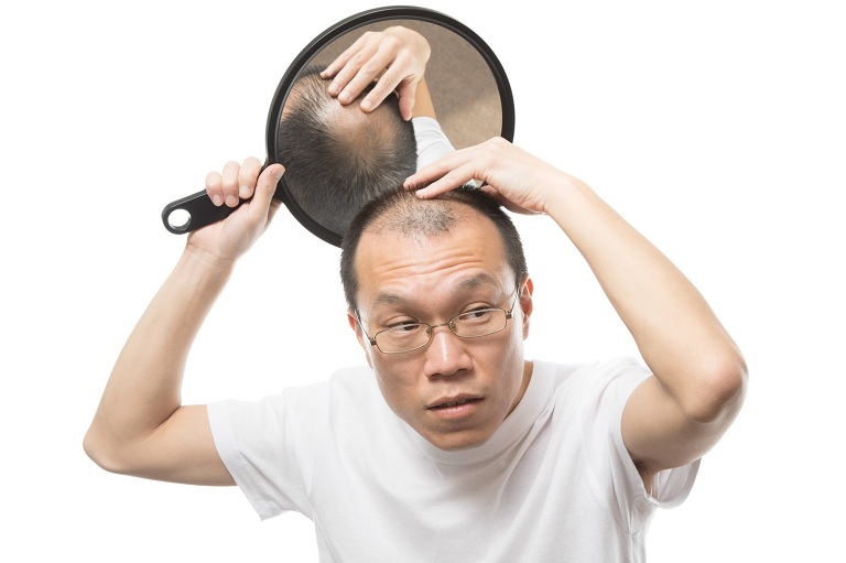 Nam giới bị hói da đầu do rối loạn hormone Testosterone