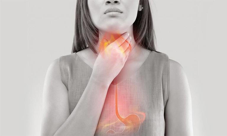 Tình trạng nuốt nước bọt thấy vướng cổ họng cũng có thể là biểu hiện của bệnh trào ngược dạ dày thực quản