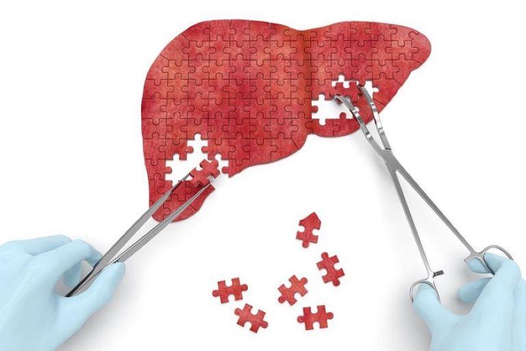 Phương pháp ghép gan đòi hỏi rất nhiều yêu cầu