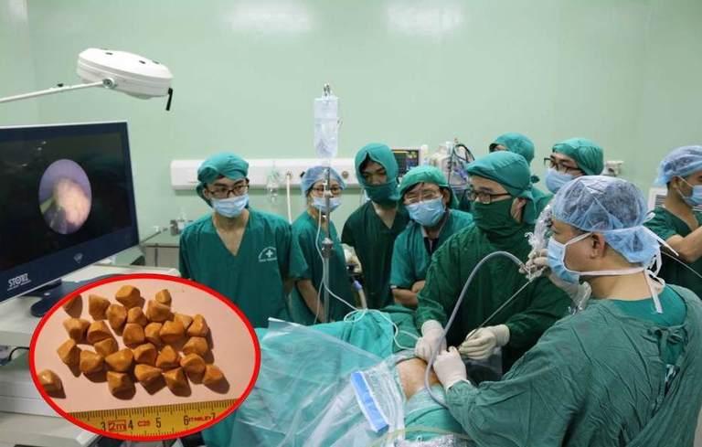 Phẫu thuật mổ sỏi túi mật nội soi là phương pháp được nhiều người lựa chọn