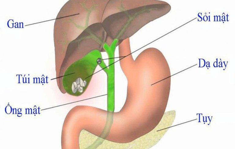 Phẫu thuật sỏi túi mật có thể làm tổn thương ống mật
