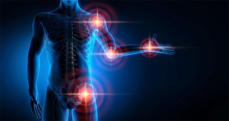 Sản phẩm Phong tê thấp hỗ trợ điều trị chứng đau nhức cơ xương khớp, đau nhức toàn thân, tê bì,...