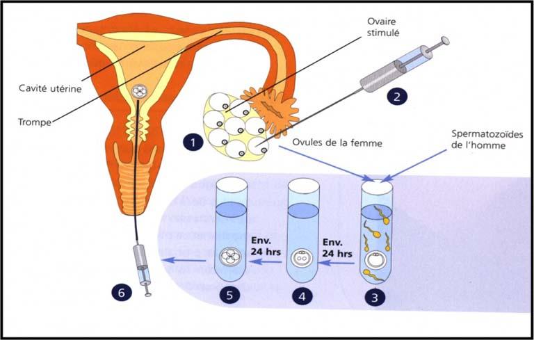 Phương pháp hỗ trợ sinh sản thụ tinh trong ống nghiệm (IVF)