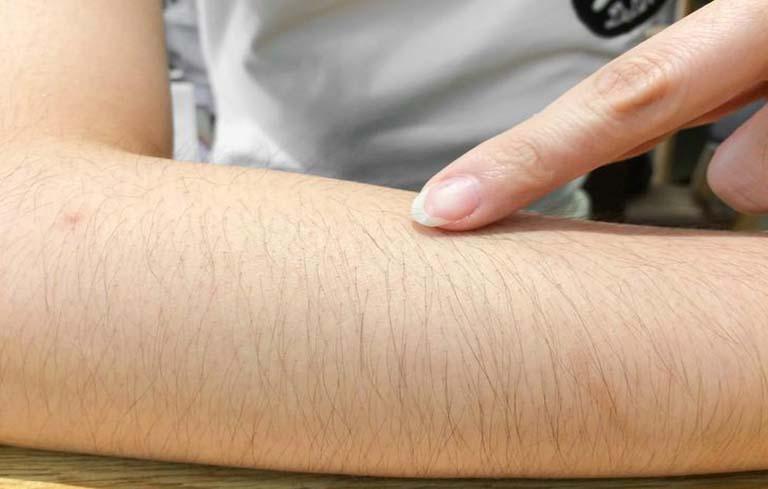 Rậm lông là một biểu hiện điển hình của bệnh