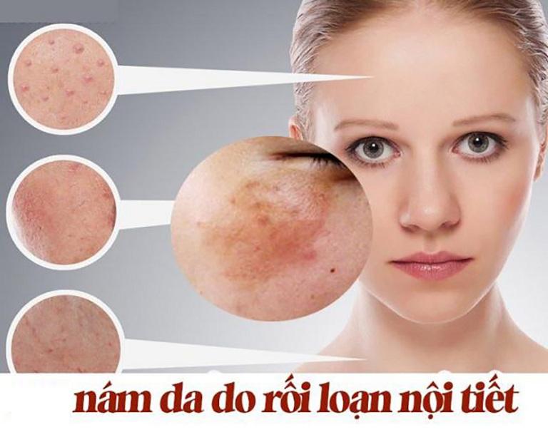 Rối loạn nội tiết tố bên trong cơ thể là một trong những nguyên nhân gây nám da