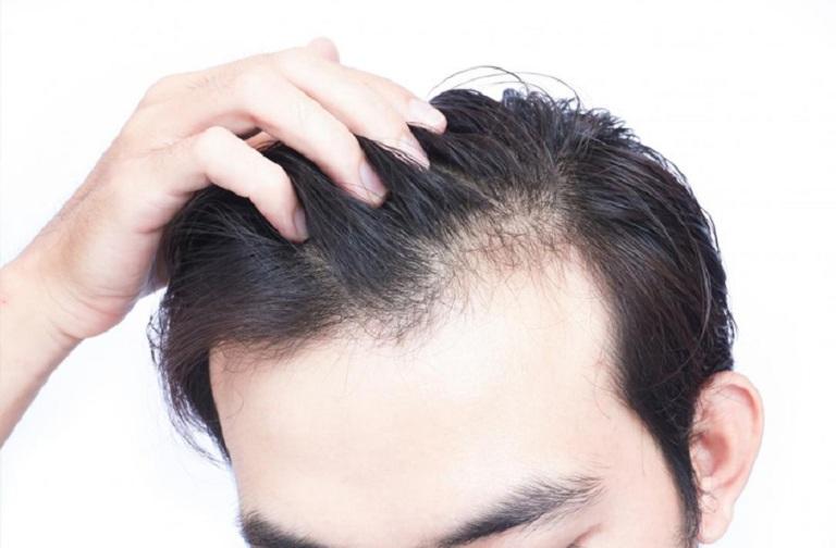 Tóc rụng nhiều có thể được cải thiện nếu lựa chọn đúng phương pháp