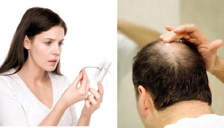 Rụng tóc gây thưa tóc, hói đầu là tình trạng có thể gặp ở cả nam và nữ