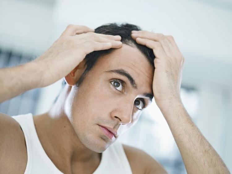 Nam giới tóc rụng nhiều do suy giảm Testosterone trong cơ thể