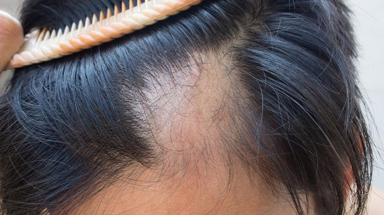 Rụng tóc là tình trạng thường gặp ở phụ nữ sau sinh nở