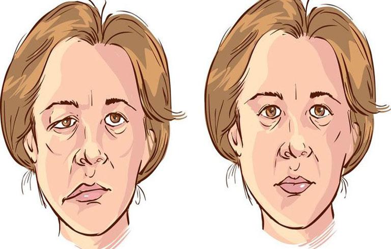 Méo miệng liệt mặt là một trong những dấu hiệu thường gặp ở bệnh nhân tai biến mạch máu não