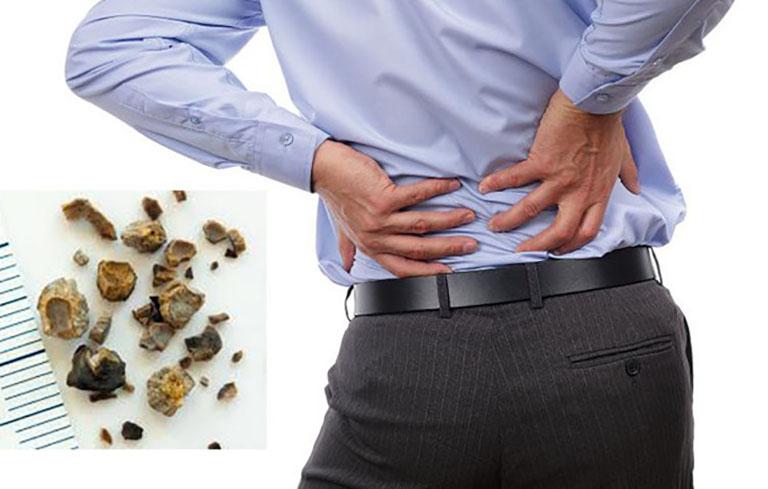 Bệnh sỏi thận nên kiêng gì? Chế độ dinh dưỡng ảnh hưởng trực tiếp đến hiệu quả điều trị