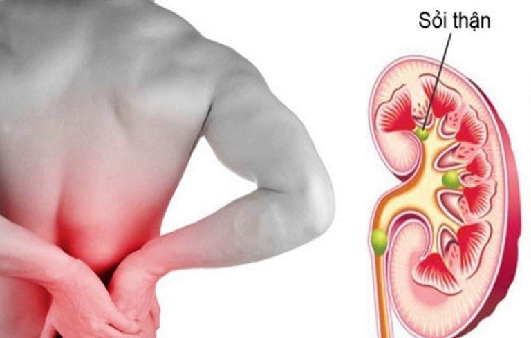 Dấu hiệu đau sỏi thận diễn ra rất phổ biến khi đột ngột thay đổi tư thế