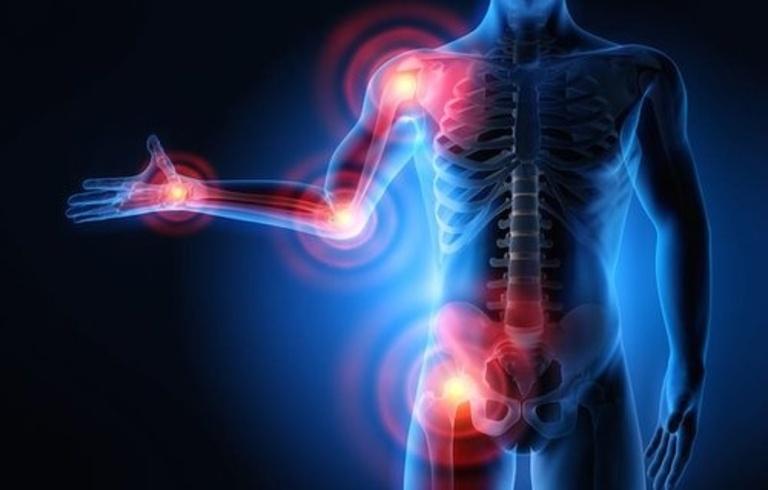 Ngoài tác dụng hạ sốt và giảm đau, Aspirin còn có tác dụng chống viêm và chống tụ huyết khối.