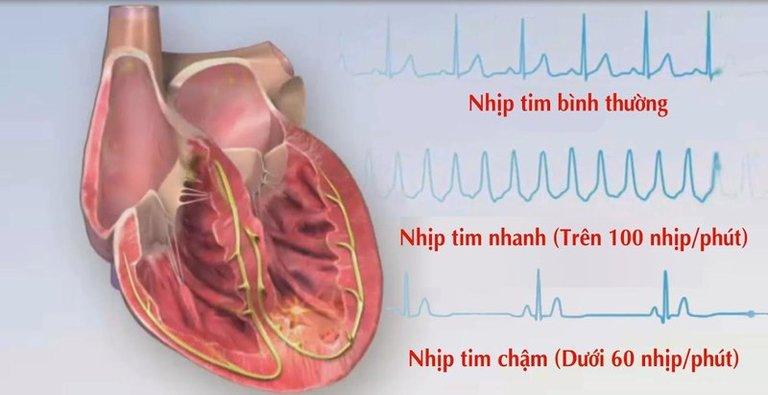 Tác dụng phụ của Berberin ảnh hưởng nhiều đến hoạt động của tim. Và vì thế, nó rất dễ dẫn đến tử vong.