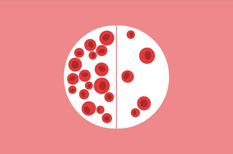 Tìm hiểu bệnh viêm khớp dạng thấp và tình trạng thiếu máu