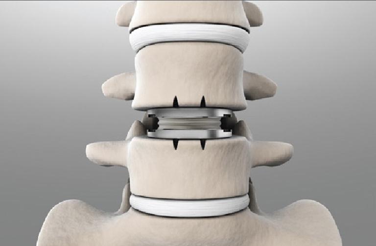 Thay đĩa đệm nhân tạo chữa thoái hóa cột sống có chi phí cao và cần kỹ thuật phức tạp. Tuy nhiên nó vẫn không chữa khỏi bệnh hoàn toàn.
