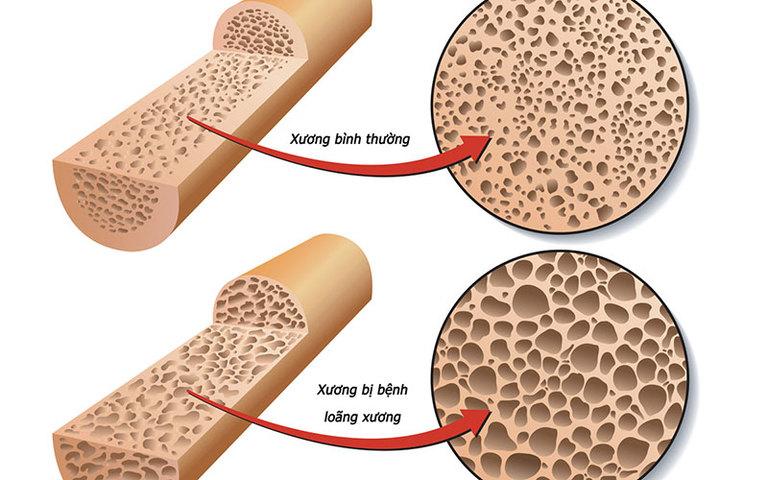 Các bệnh về xương khớp (tiêu biểu như loãng xương) có thể là nguyên nhân gây đau xương khớp sau sinh. Tuy nhiên, nguyên nhân này thường không phổ biến.