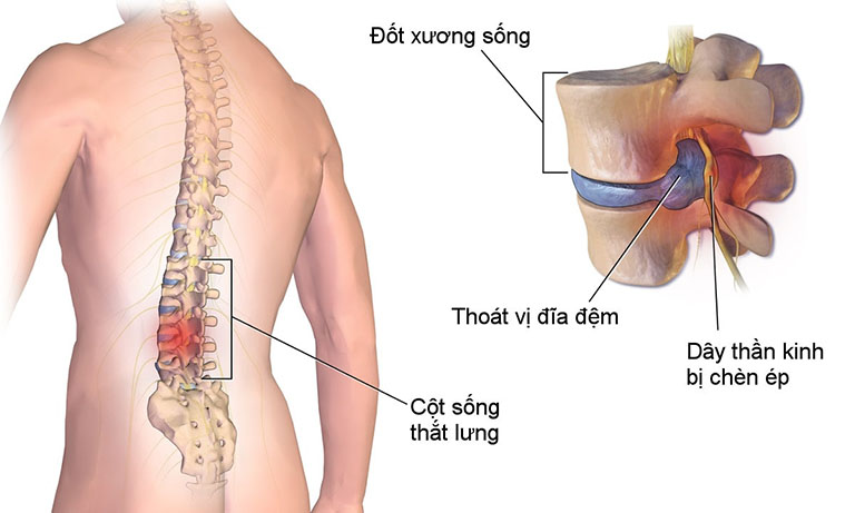 Thoái hóa cột sống chèn dây thần kinh có nguy hiểm không?
