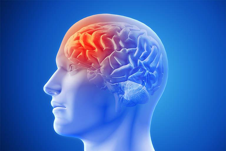 Thoái hóa đốt sống cổ gây thiếu máu não nguy hiểm như thế nào?