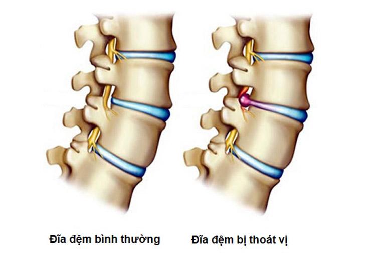 Thoát vị đĩa đệm là một trong những nguyên nhân gây đau lưng sau khi ngủ dậy