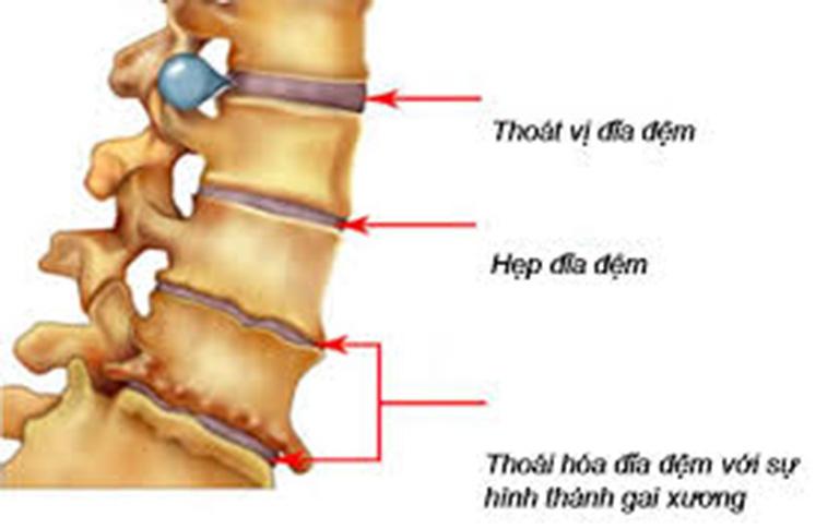 Đau vùng thắt lưng có thể là triệu chứng của bệnh thoát vị đĩa đệm