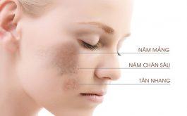 Nám da mặt là nỗi lo lắng của nhiều chị em phụ nữ