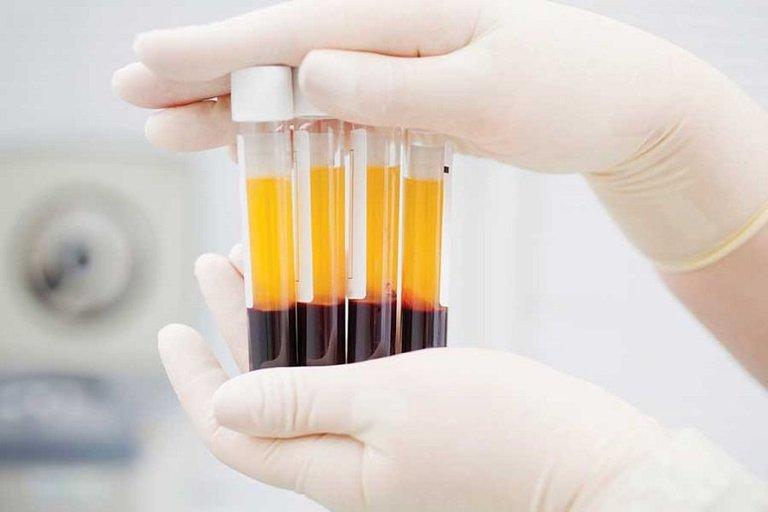 Những trường hợp đau cột sống nặng sau sinh mổ sẽ cân nhắc dùng đến kỹ thuật tiêm huyết tương giàu tiểu cầu tự thân.
