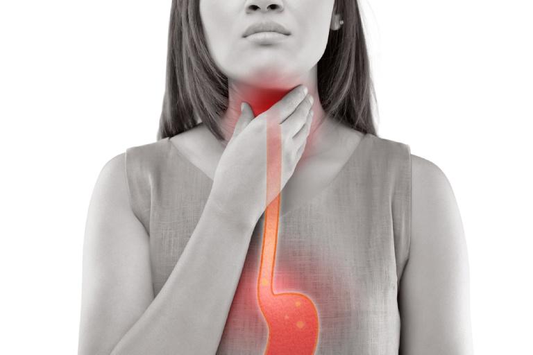 Đánh trào ngược, viêm đau dạ dày bằng thuốc Gaviscon