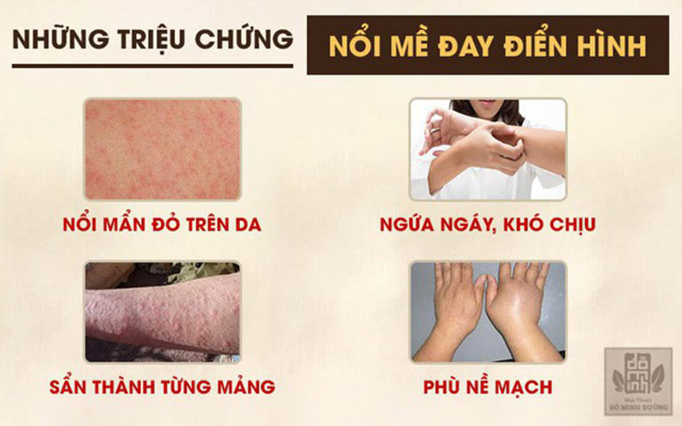 4 triệu chứng điển hình của bệnh mề đay mãn tính