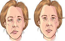 Méo miệng là một trong những dấu hiệu điển hình của tai biến mạch máu não