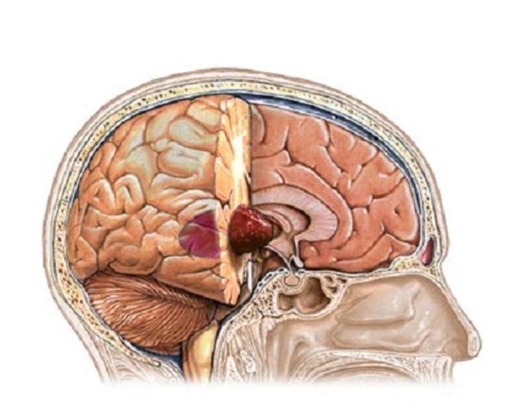 U não hố sau là bệnh lý rất nguy hiểm gây đau vai gáy ở trẻ em.