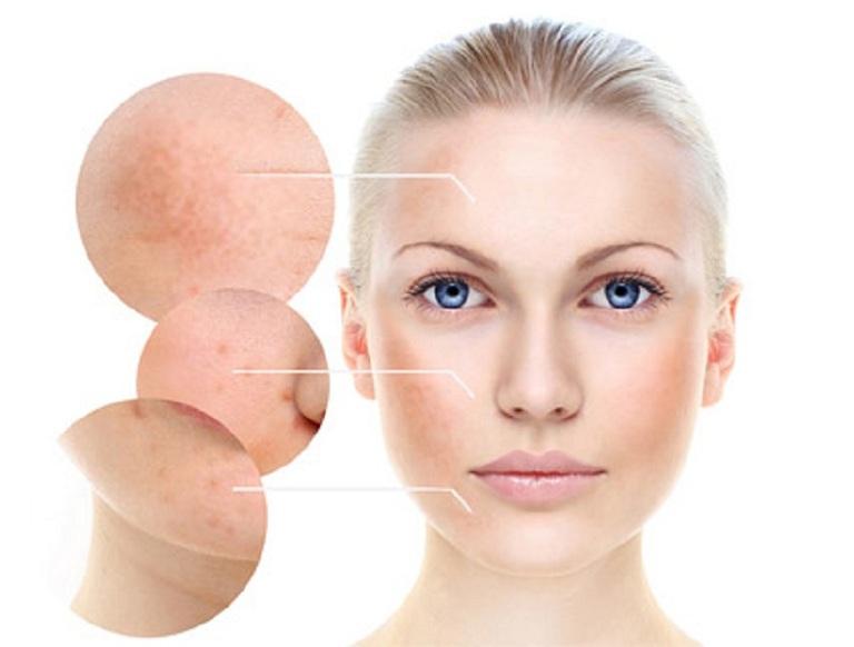 Vùng da mặt là vị trí thường xuyên tiếp xúc nhiều với ánh nắng mặt trời