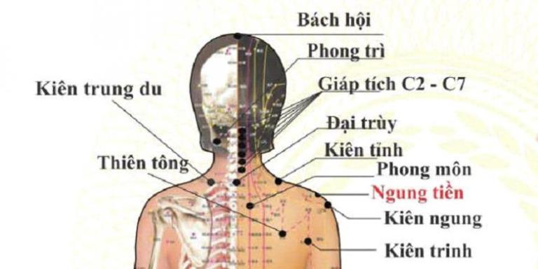 Vị trí một số huyệt đạo liên quan đến tình trạng đau vai gáy.