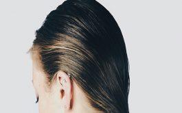 Viêm da tiết bã da đầu
