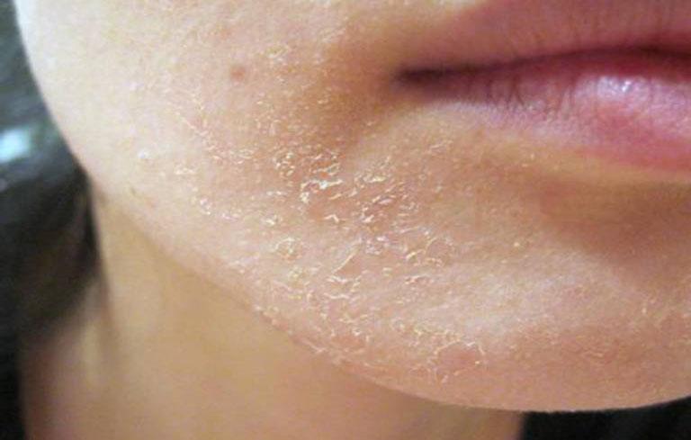 Hình ảnh viêm da tiết bã nhờn ở mặt