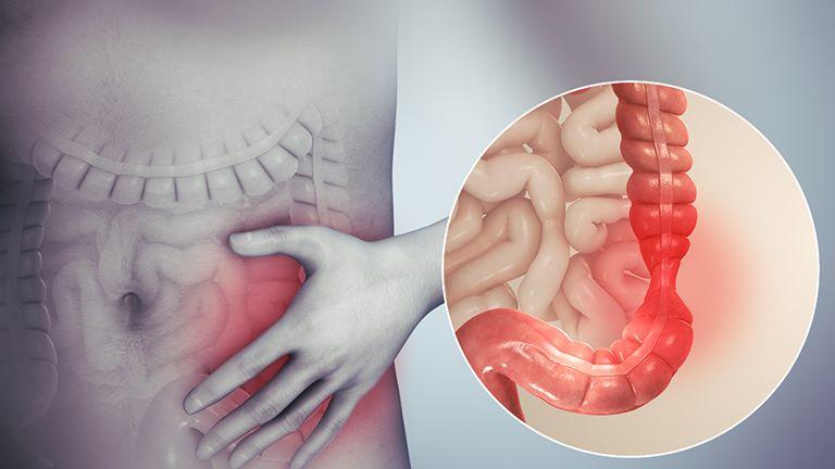 Viêm đại tràng co thắt còn được gọi là hội chứng ruột kích thích