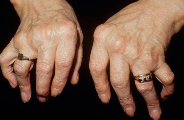 Triệu chứng của bệnh viêm khớp dạng thấp huyết thanh dương tính