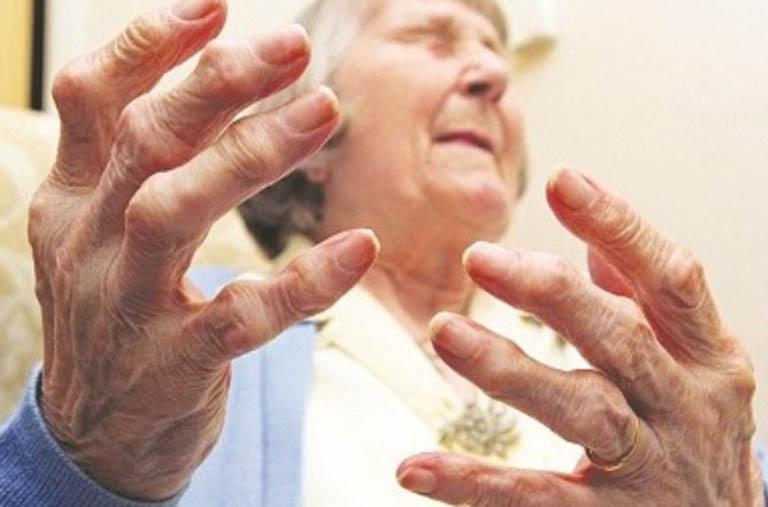 Viêm khớp dạng thấp huyết thanh dương tính có nguy hiểm không?
