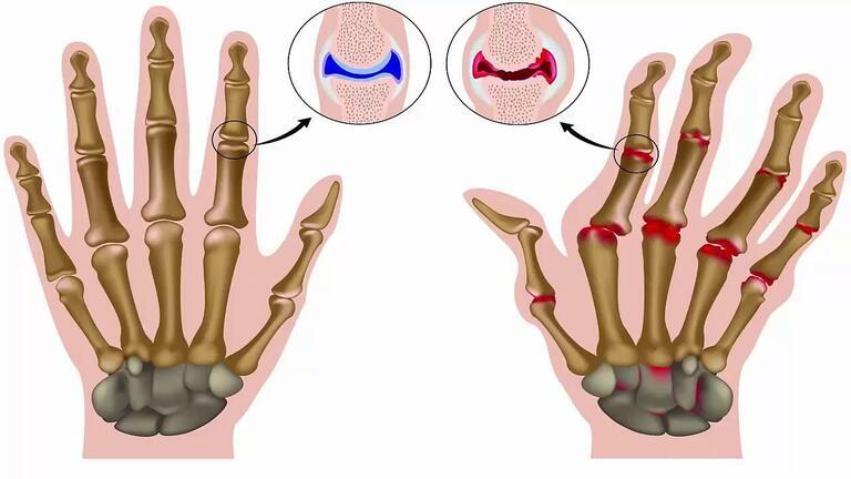 Viêm khớp dạng thấp là bệnh tự miễn dễ gây biến dạng khớp ở bàn tay nếu không được điều trị kịp thời.