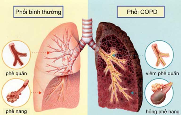 Bệnh viêm phổi tắc nghẽn mãn tính COPD do viêm phế quản không điều trị tốt