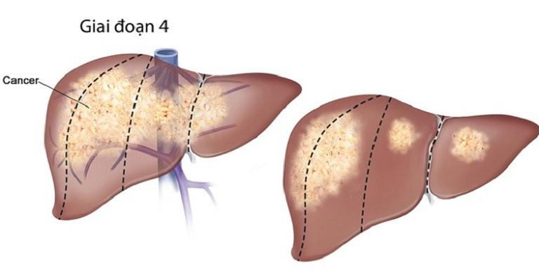 Giai đoạn 4 chức năng gan suy giảm hoàn toàn, dường như không có khả năng phục hồi
