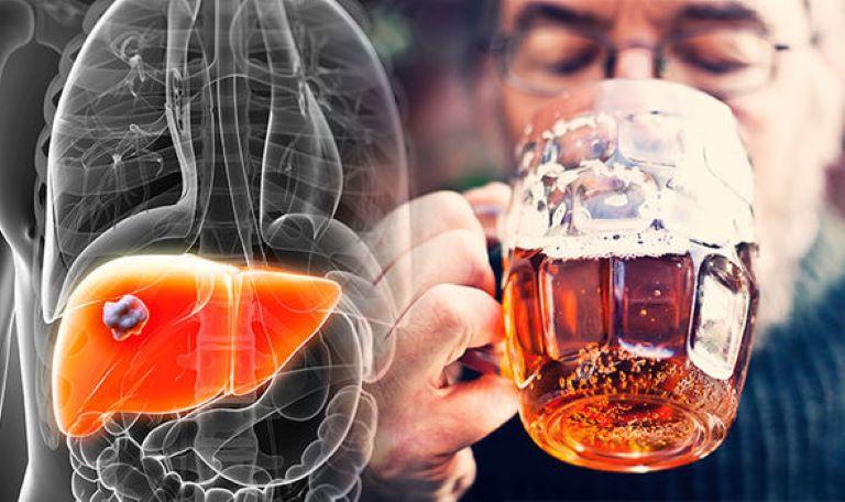 Uống rượu bia nhiều gây xơ gan