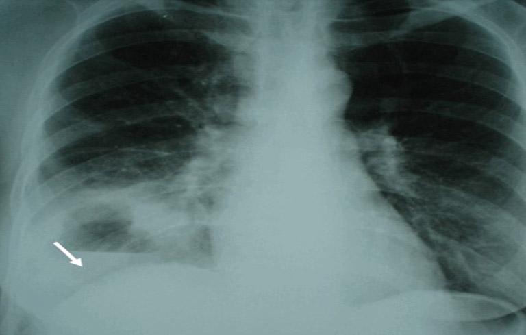 Hình ảnh ổ áp xe phổi phải có mức nước mức hơi trên phim