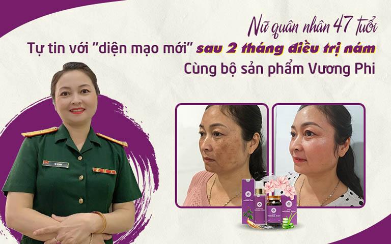 """Chị Hồng Vân """"hồi sinh"""" làn da rạng rỡ với tình trạng nám nặng được cải thiện tích cực sau chưa đầy 1 liệu trình sử dụng Vương Phi"""
