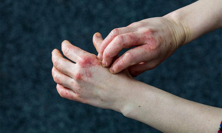 điều trị bệnh nhân viêm da tiếp xúc dị ứng bội nhiễm