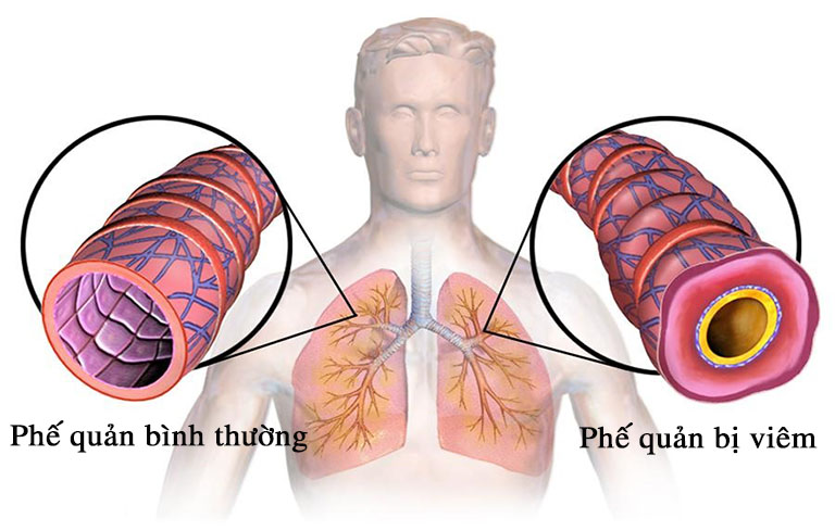 Viêm phế quản là một tình trạng viêm nhiễm đường hô hấp tiềm ẩn nhiều rủi ro