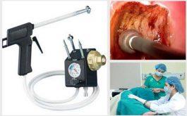 Áp lạnh chữa viêm lộ tuyến cổ tử cung là phương pháp mang lại hiệu quả điều trị bệnh nhanh chóng
