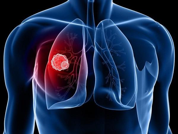 Áp-xe phổi có lây không là thắc mắc của nhiều người bệnh