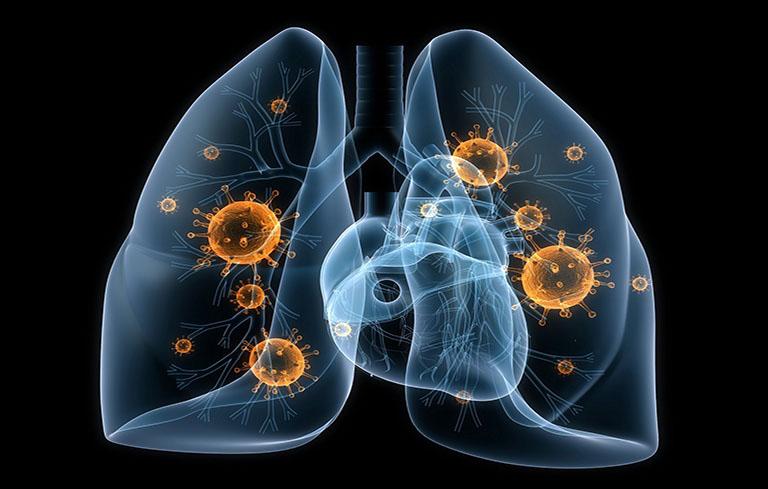 Áp xe phổi đa phần xuất phát từ việc phổi bị nhiễm vi khuẩn, nấm, ký sinh trùng